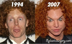 carrot-top-plastic-surgery-before-and-after